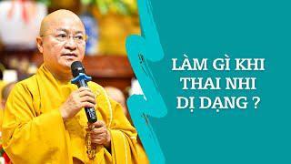 Làm gì khi THAI NHI DỊ DẠNG ? | TT. Thích Nhật Từ